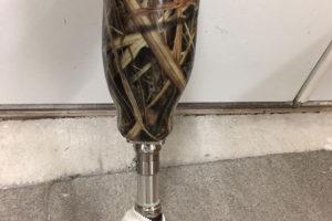 prosthetic-leg-lafayette-indiana